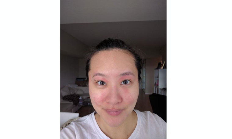 korean-beauty-products-for-contact-dermatitis