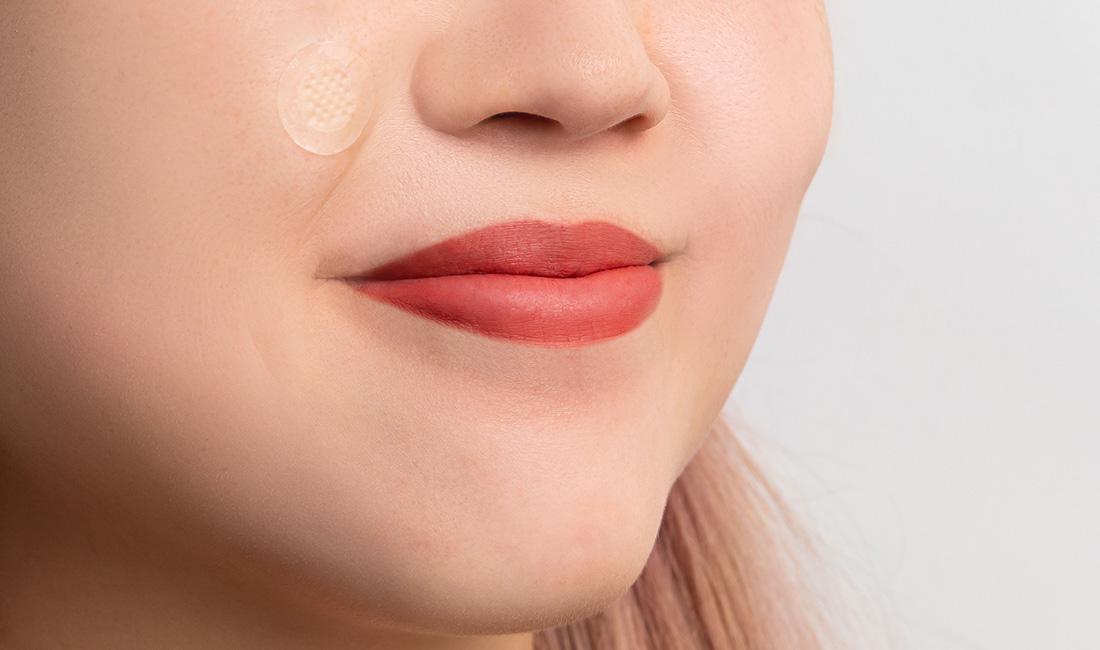 The Reason Why You Keep Getting Pimples In The Same Place