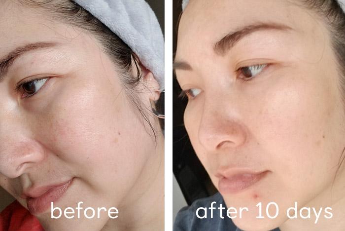 skinrx-lab-madecera-face-cream-review
