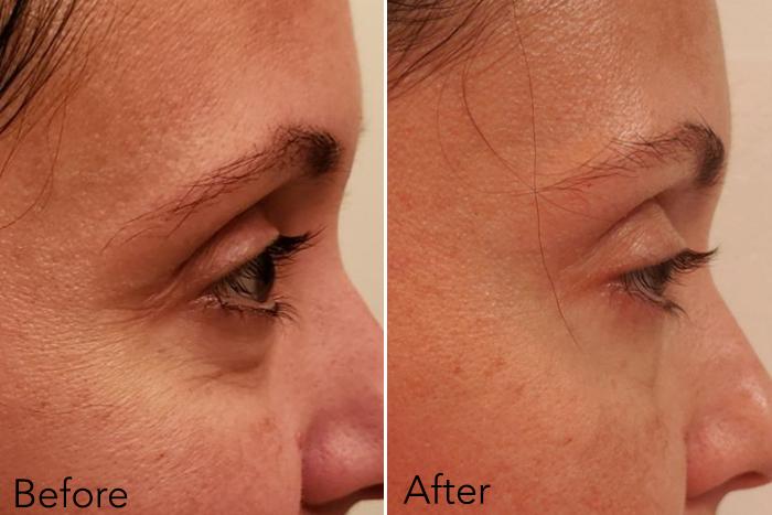 Swanicoco Fermentation Peptine Eye Care Cream Review