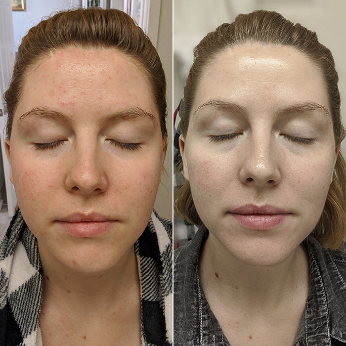 Before And After A Korean Routine For Sensitive Acne Prone Skin