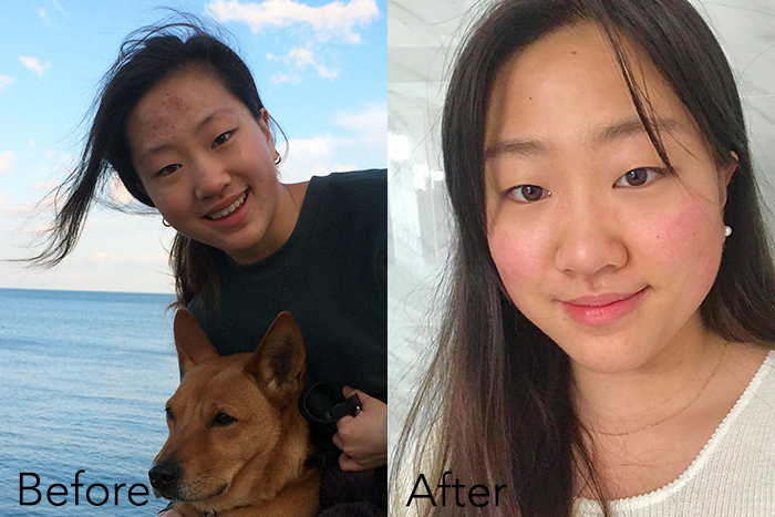 teen acne routine before and after