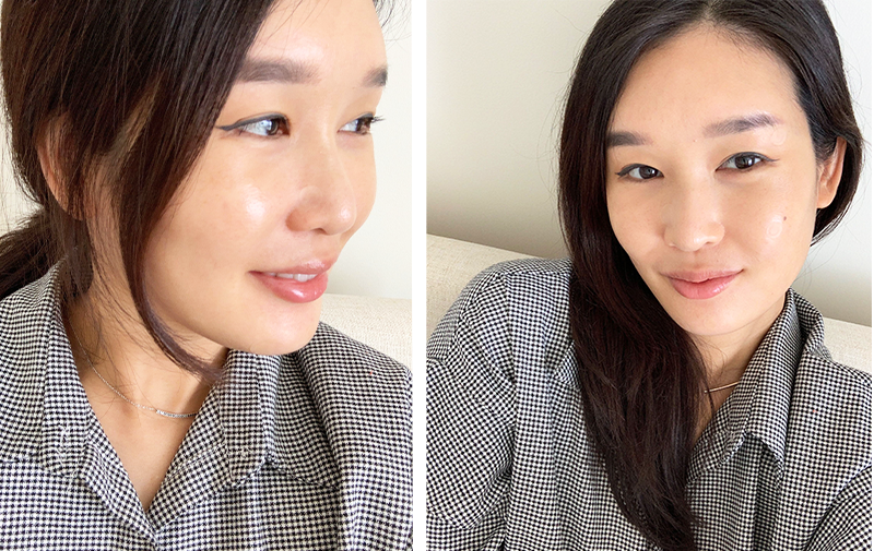 Charlotte Cho with Soft Shield Pimple Patches on Face